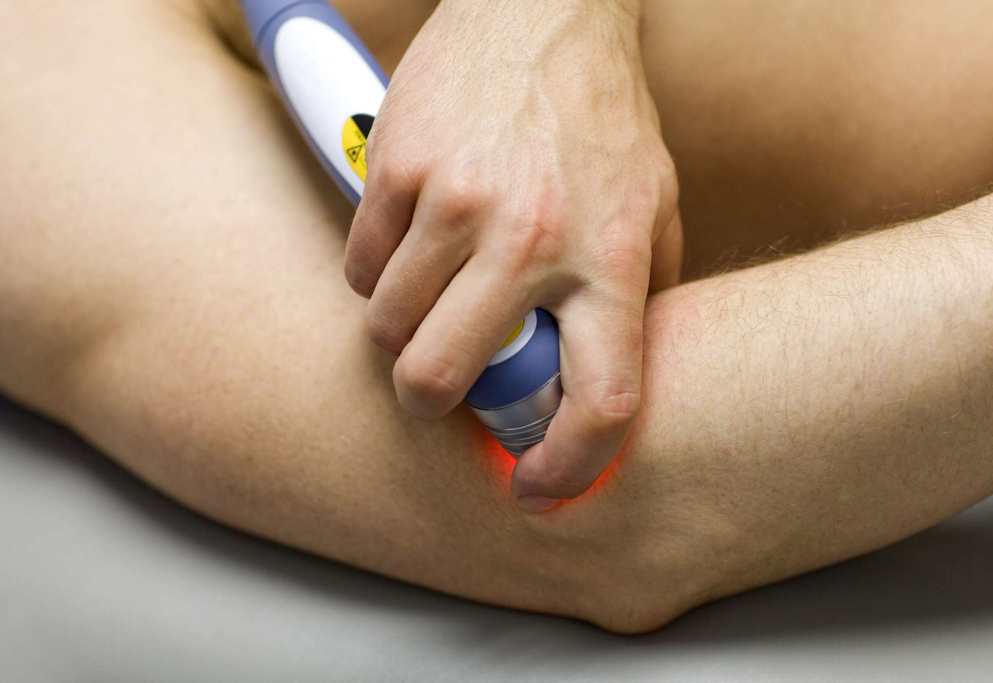 Laser therapy on an elbow