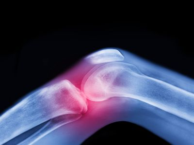 Illustration of knee joint with pain