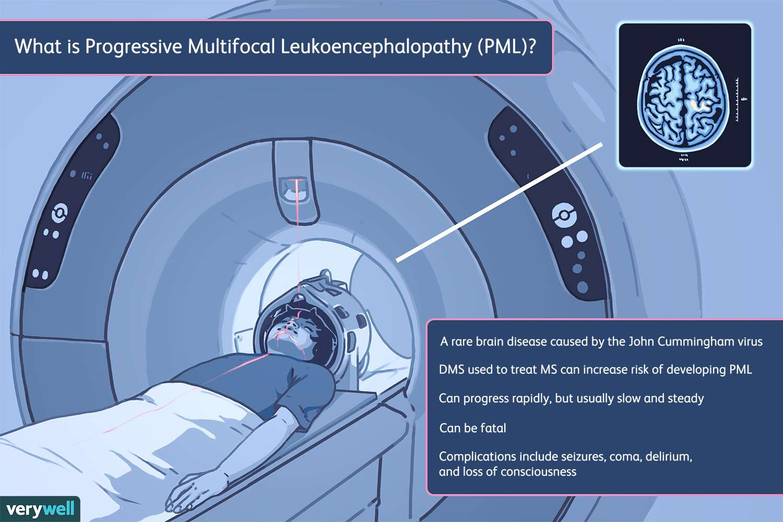 What Is Progressive Multifocal Leukoencephalopathy (PML)?