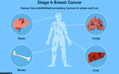 stage 4 breast cancer locations