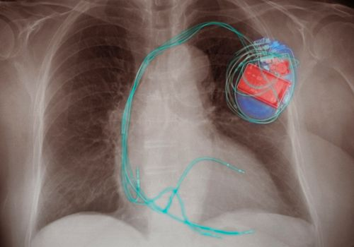 An x-ray of a pacemaker inside of a person