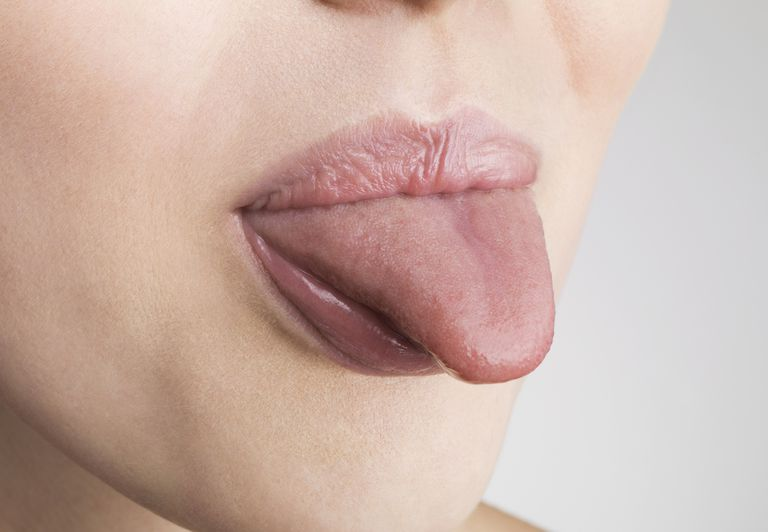 Myofunctional therapy consists of tongue exercises that may help sleep apnea