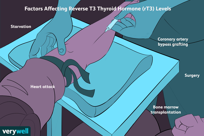 factors affecting reverse t3 thyroid hormone levels