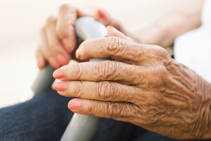 An elderly woman with arthritis in her hands