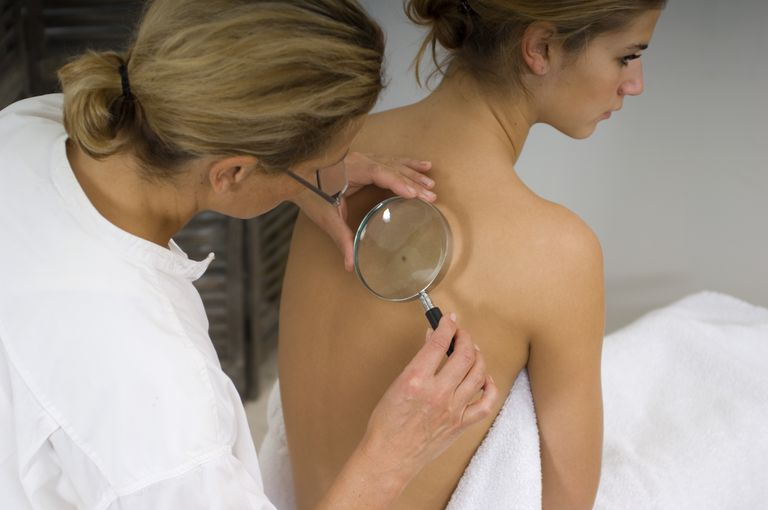 Female doctor examining beauty spots with magnifying glass on woman's back