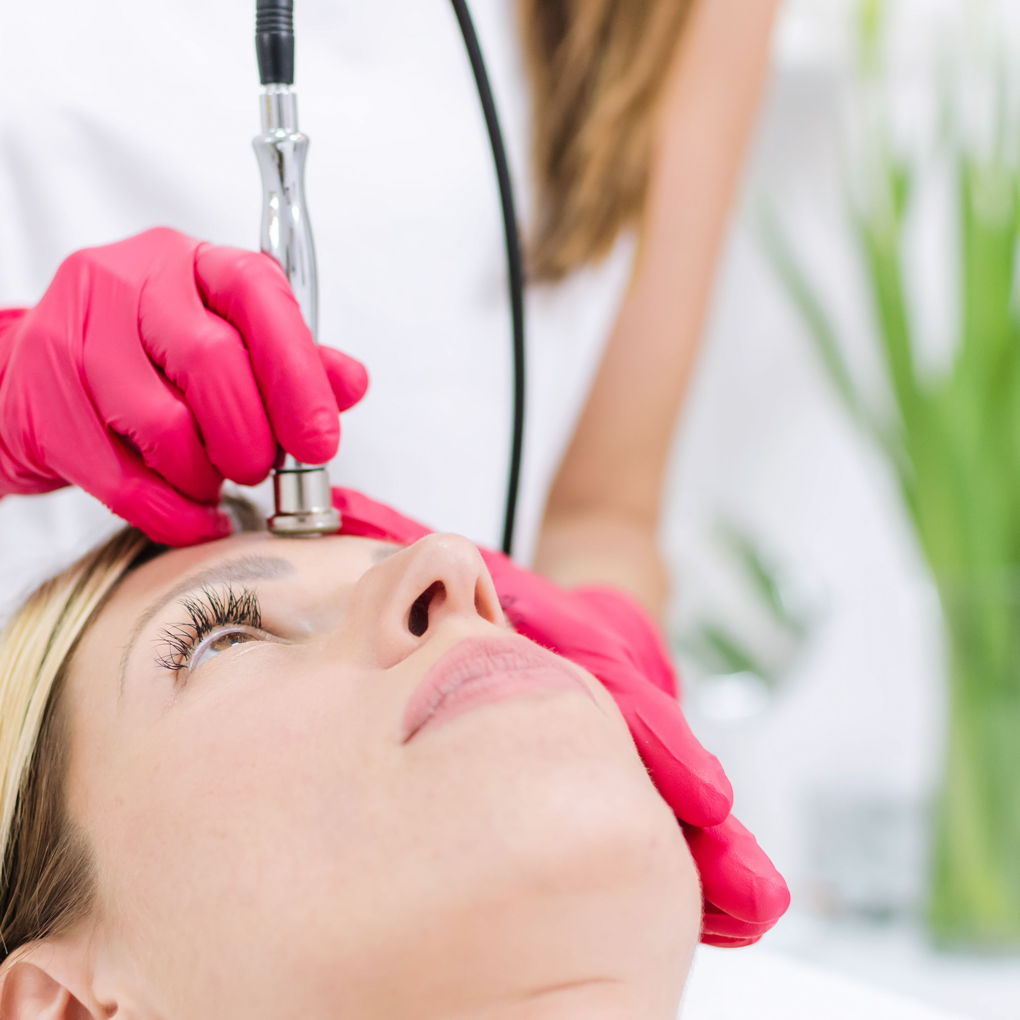 The Effects of Microdermabrasion on the Skin