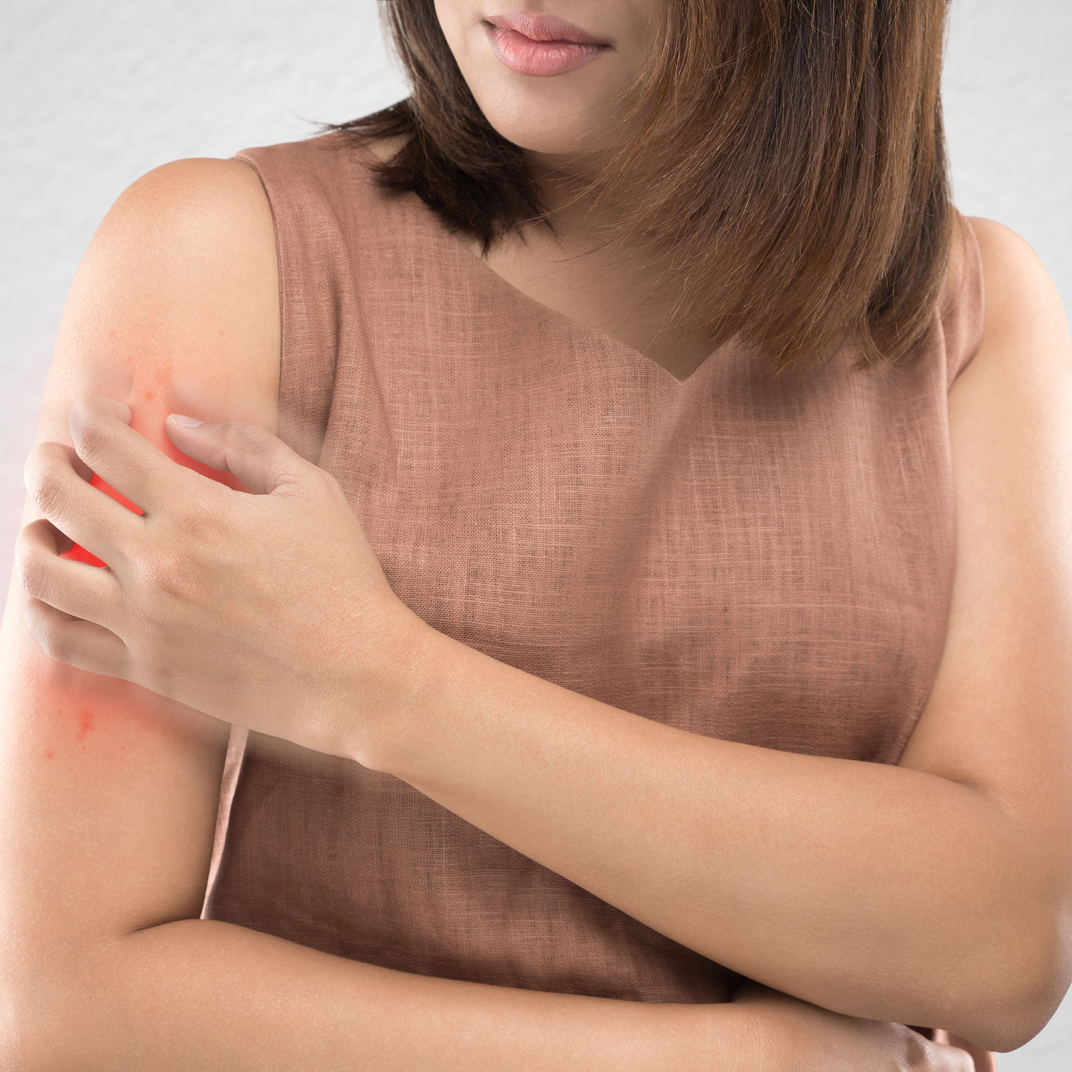 9 Drugs That Can Trigger or Worsen Psoriasis