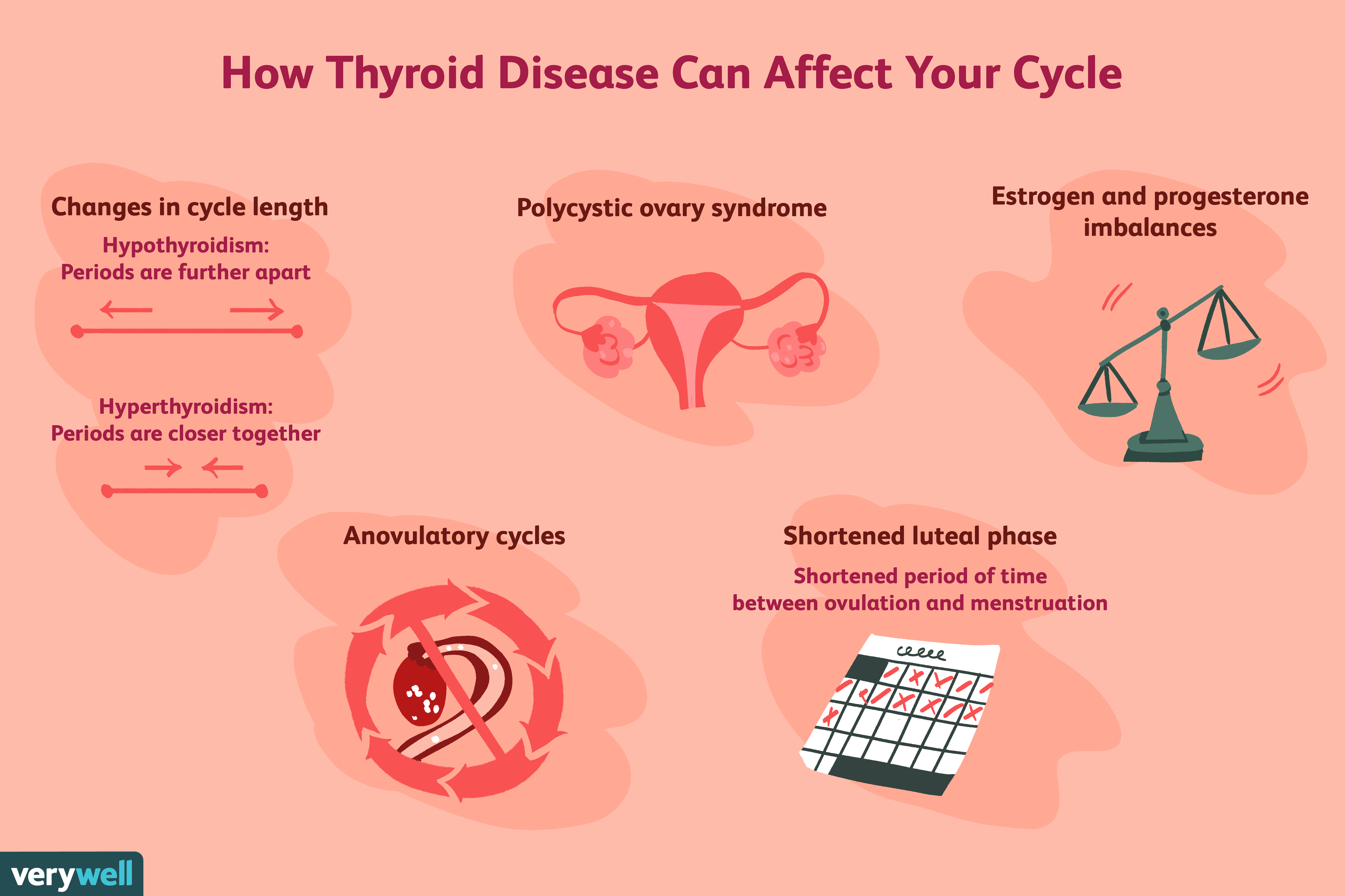 Infertility And Thyroid Disease