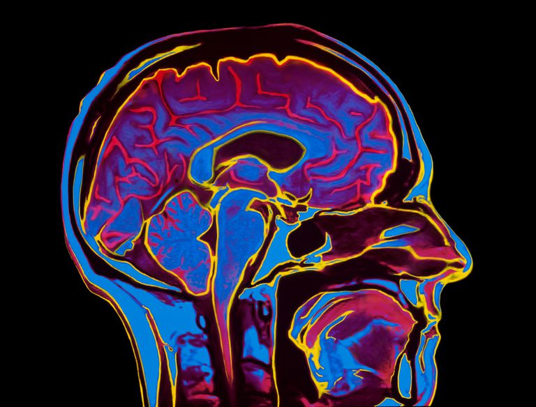 heat imaging illustration of a brain scan