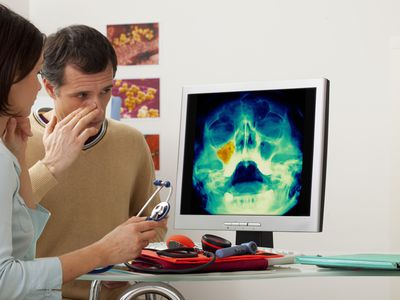 Sinusitis in a man On screen, colorized x-ray showing a maxillary sinusitis.