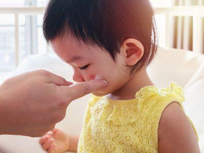 Toddler eczema treatment with cream