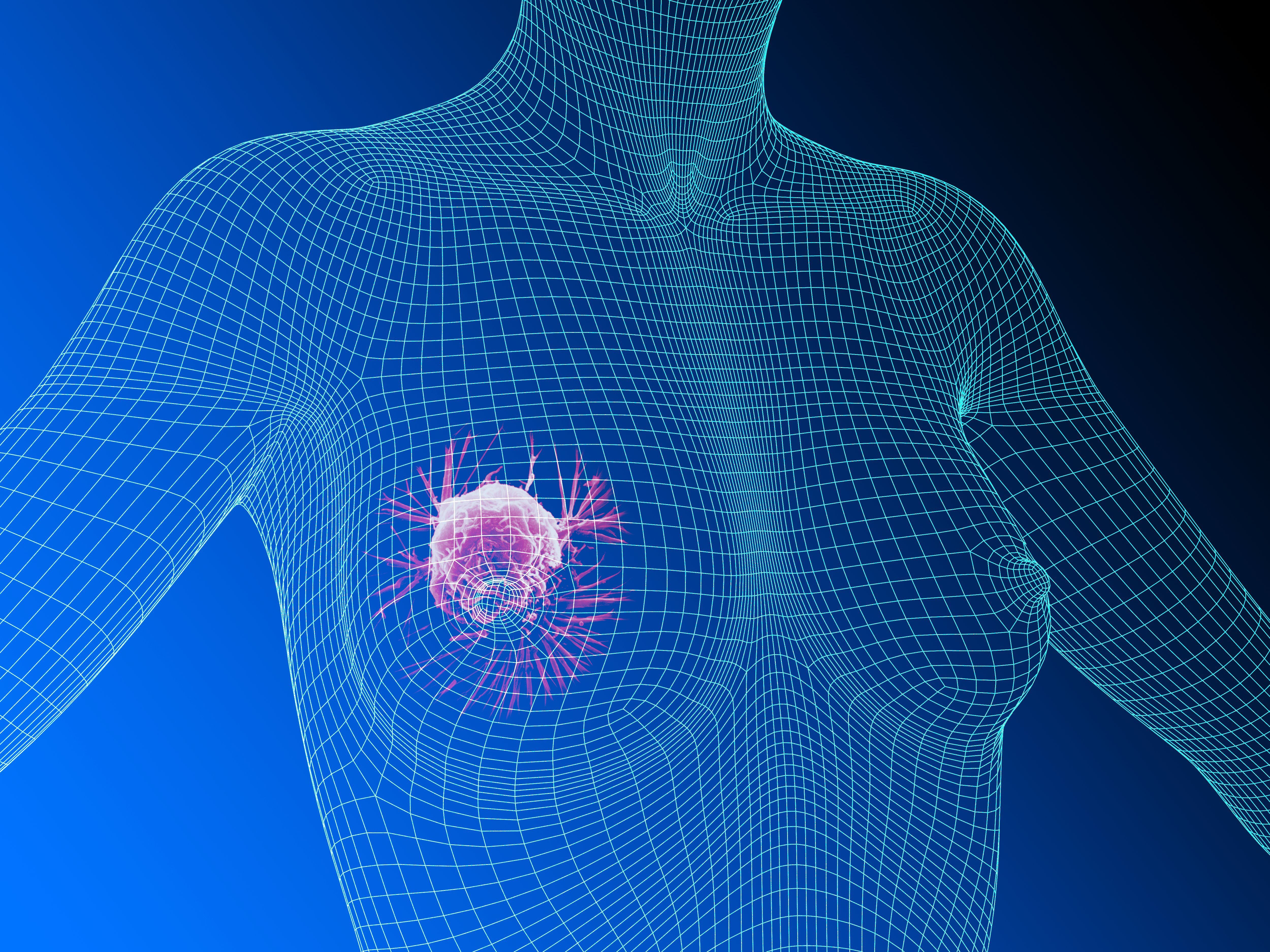 Breast Biopsy Uses Side Effects Procedure Results