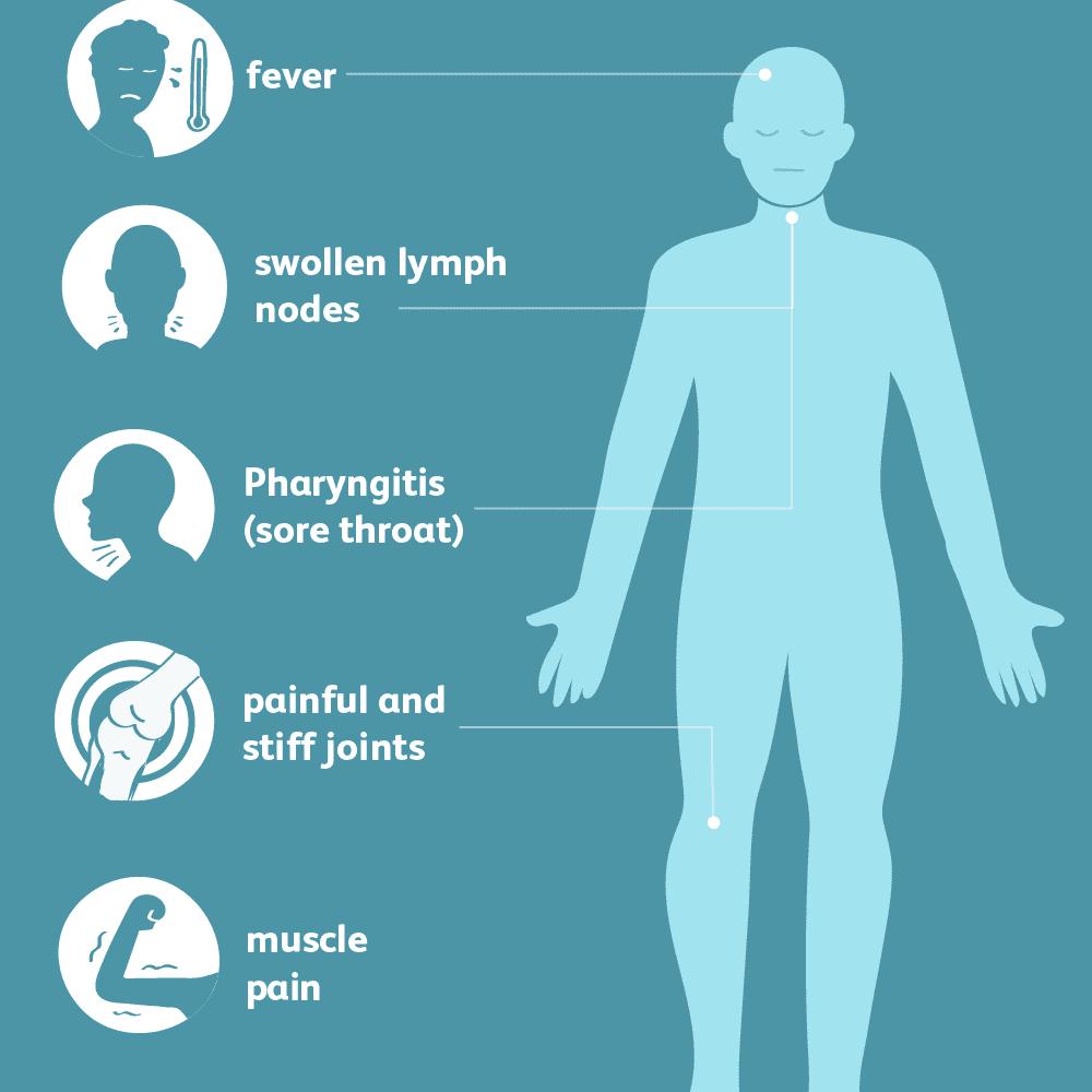Symptoms of Still's Disease