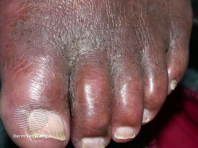 Common Foot Rashes Symptoms Causes And Treatments