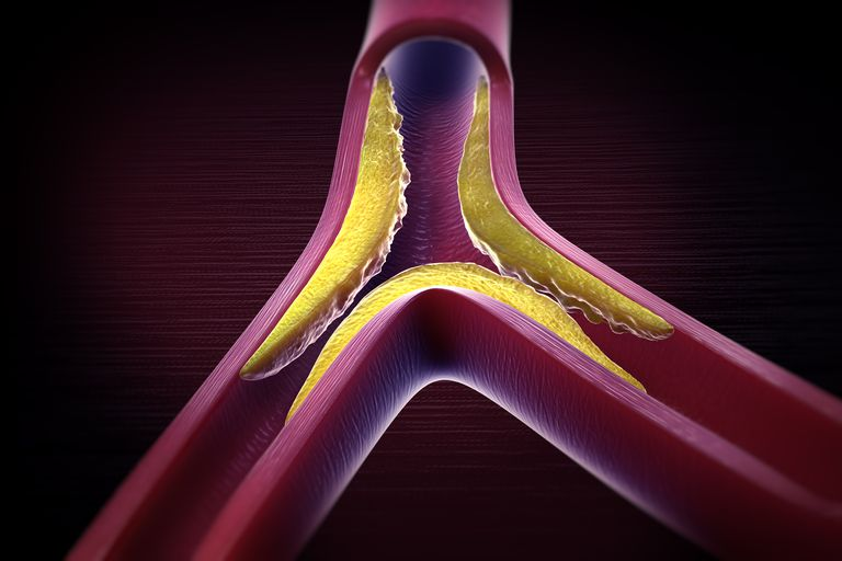 illustration of Atherosclerosis