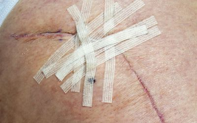 Healing Your Scabs After Surgery