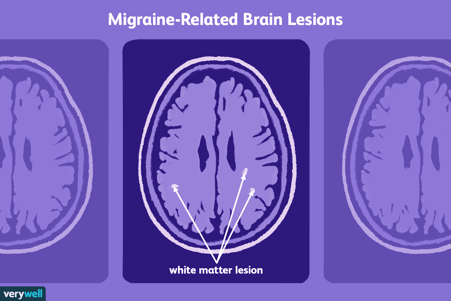 Understanding Migraine-Related Brain Lesions on Your MRI