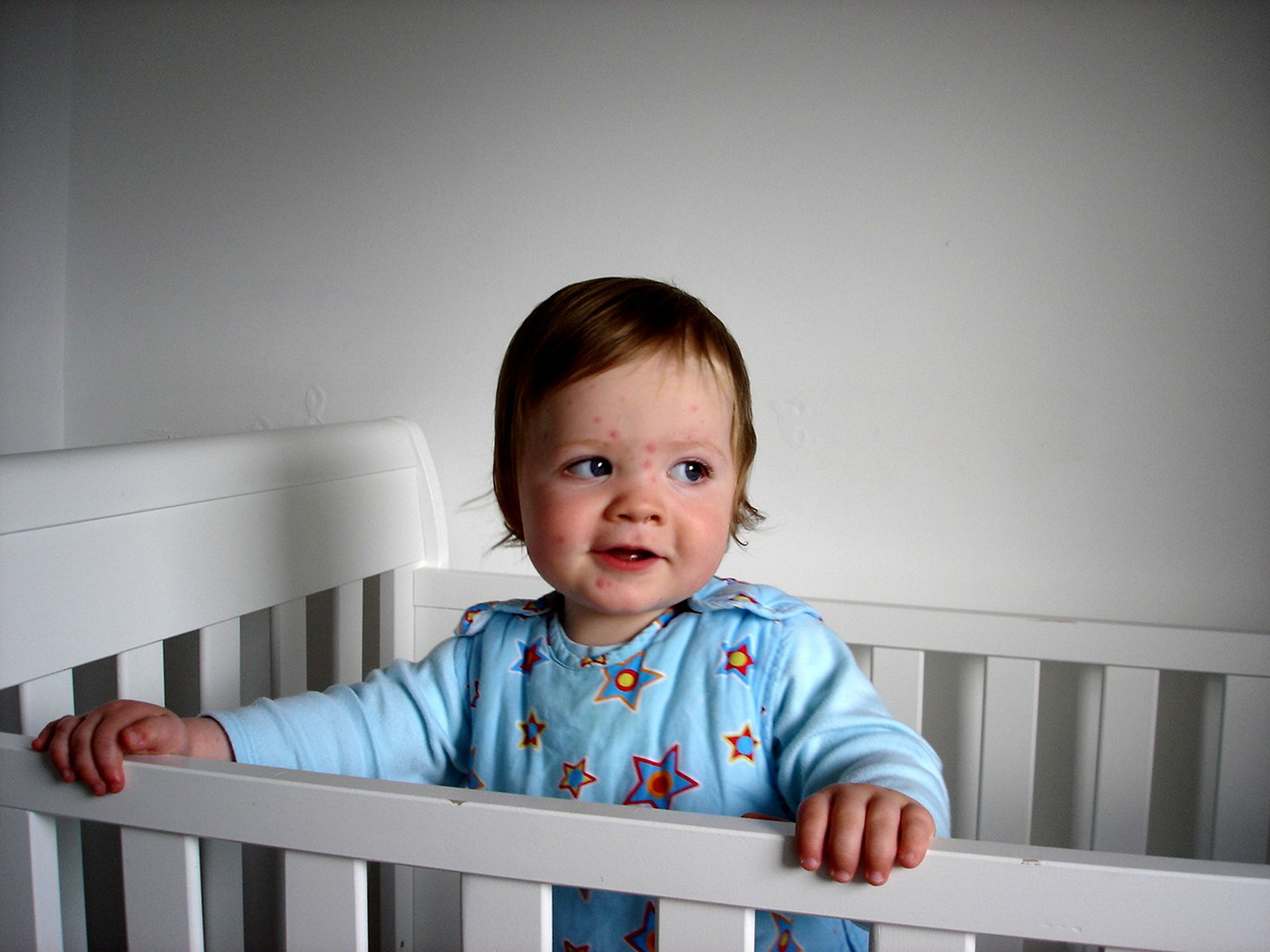Toddler with acne inside of crib