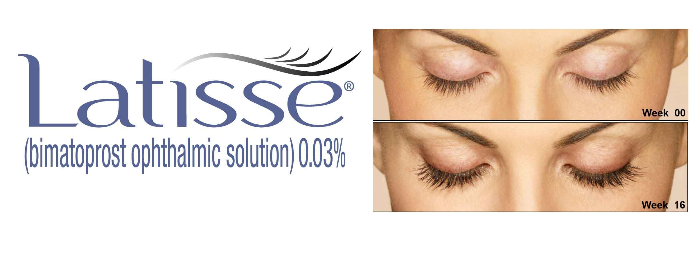 Should You Use Latisse For Chemotherapy Eyelash Loss