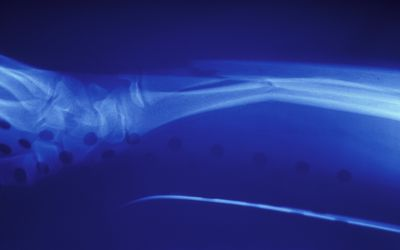 X-RAY SHOWING FRACTURE