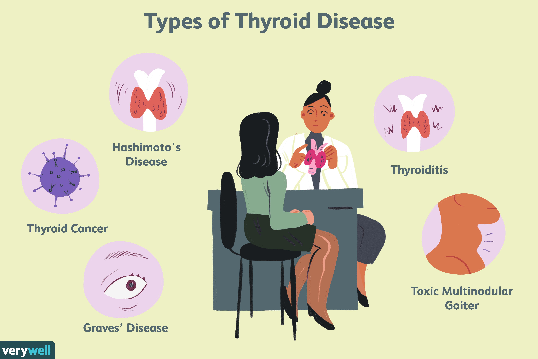 Types of Thyroid Disease
