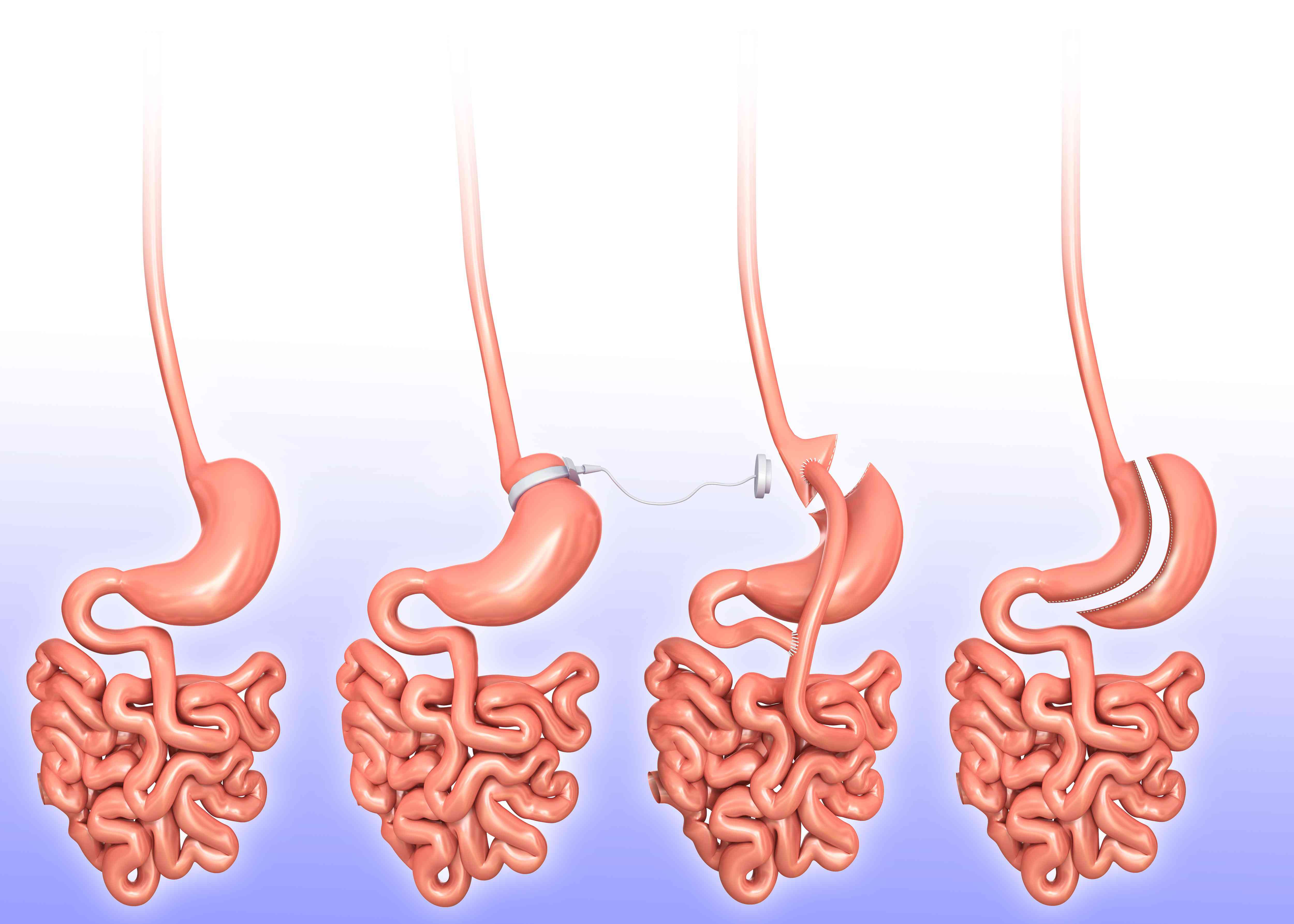 Steps involved in gastric sleeve surgery