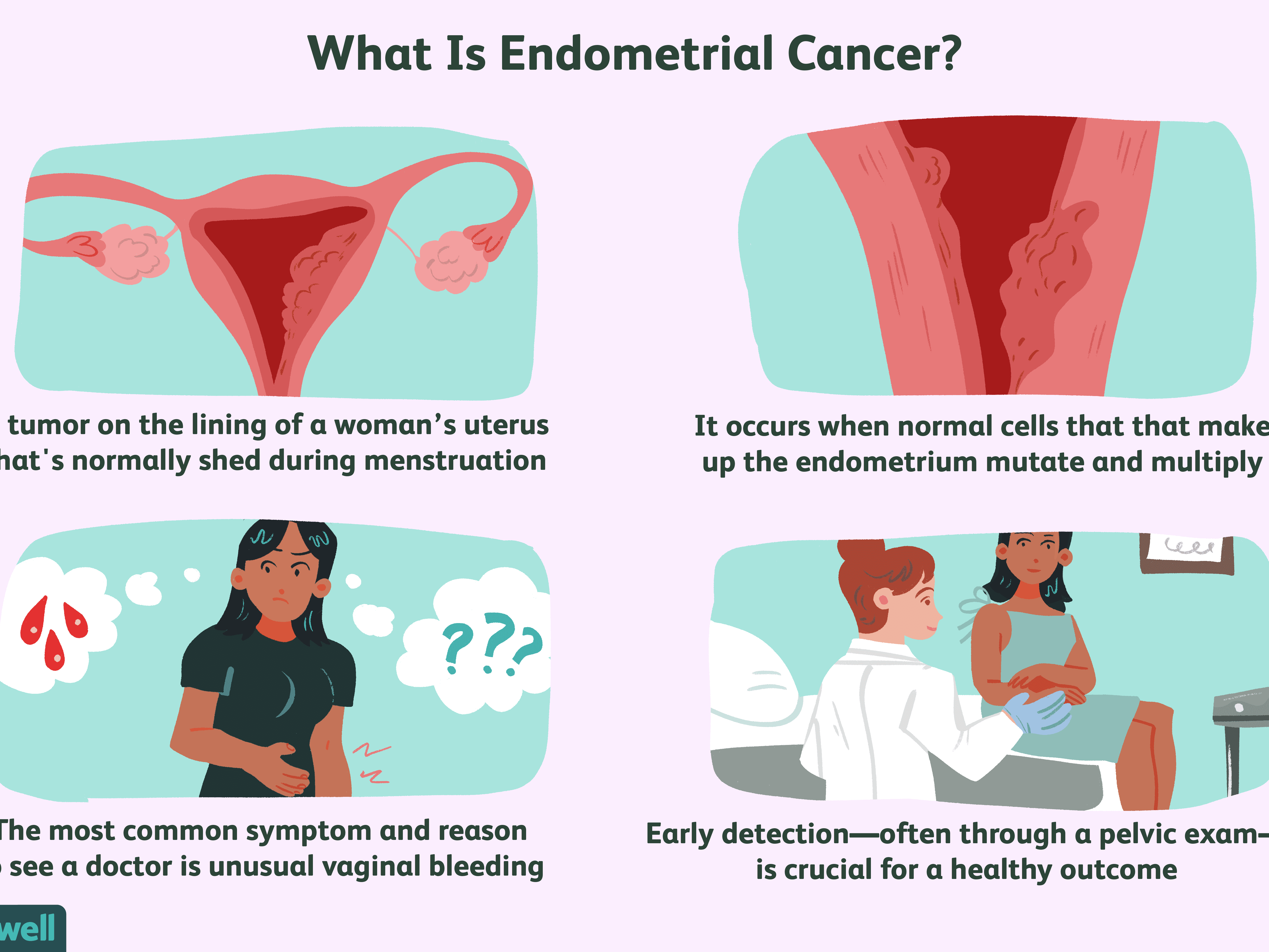 Endometrial Cancer Overview And More