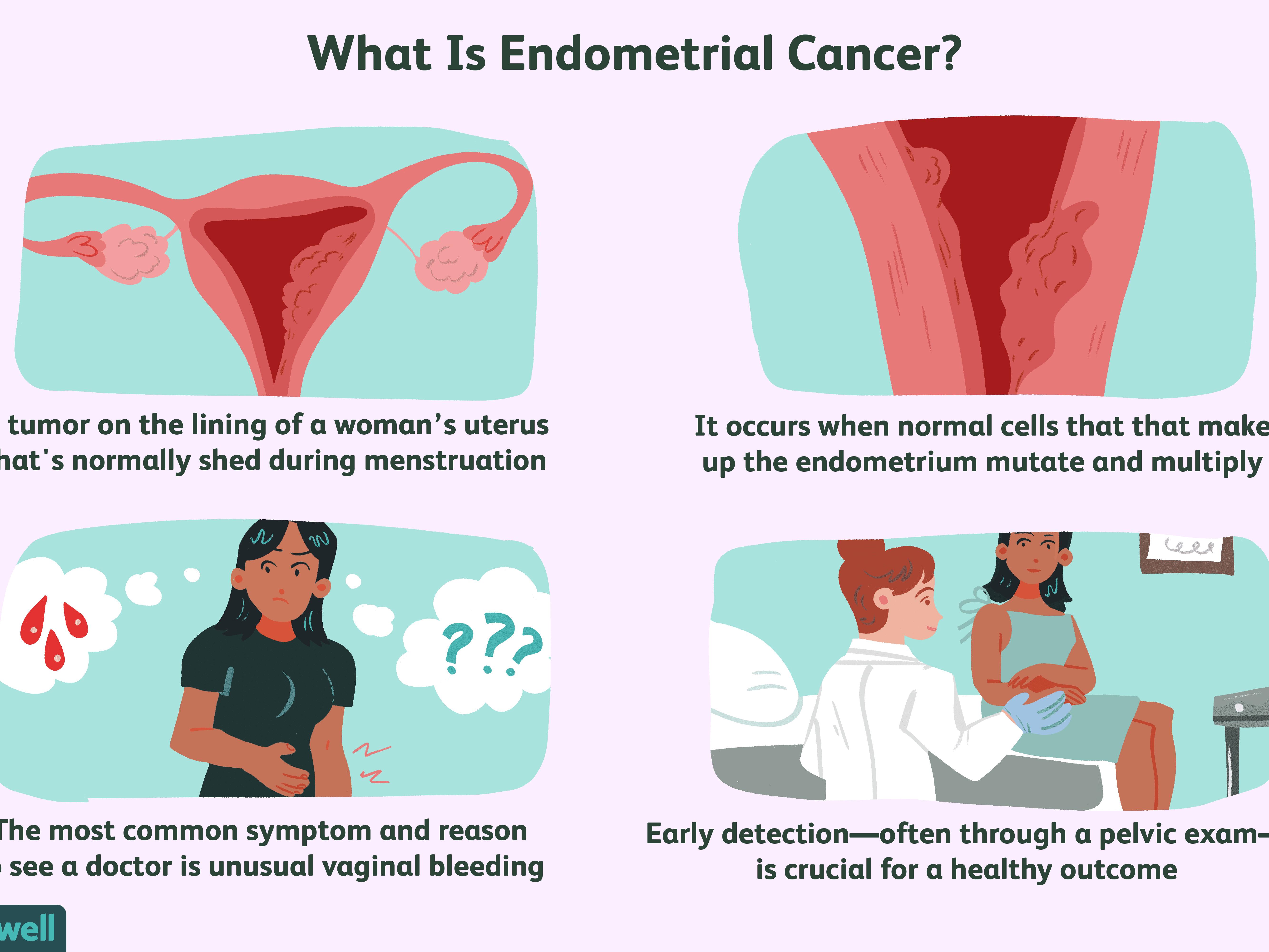endometrial cancer bleeding pattern