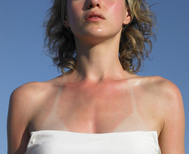 Woman with a sunburn