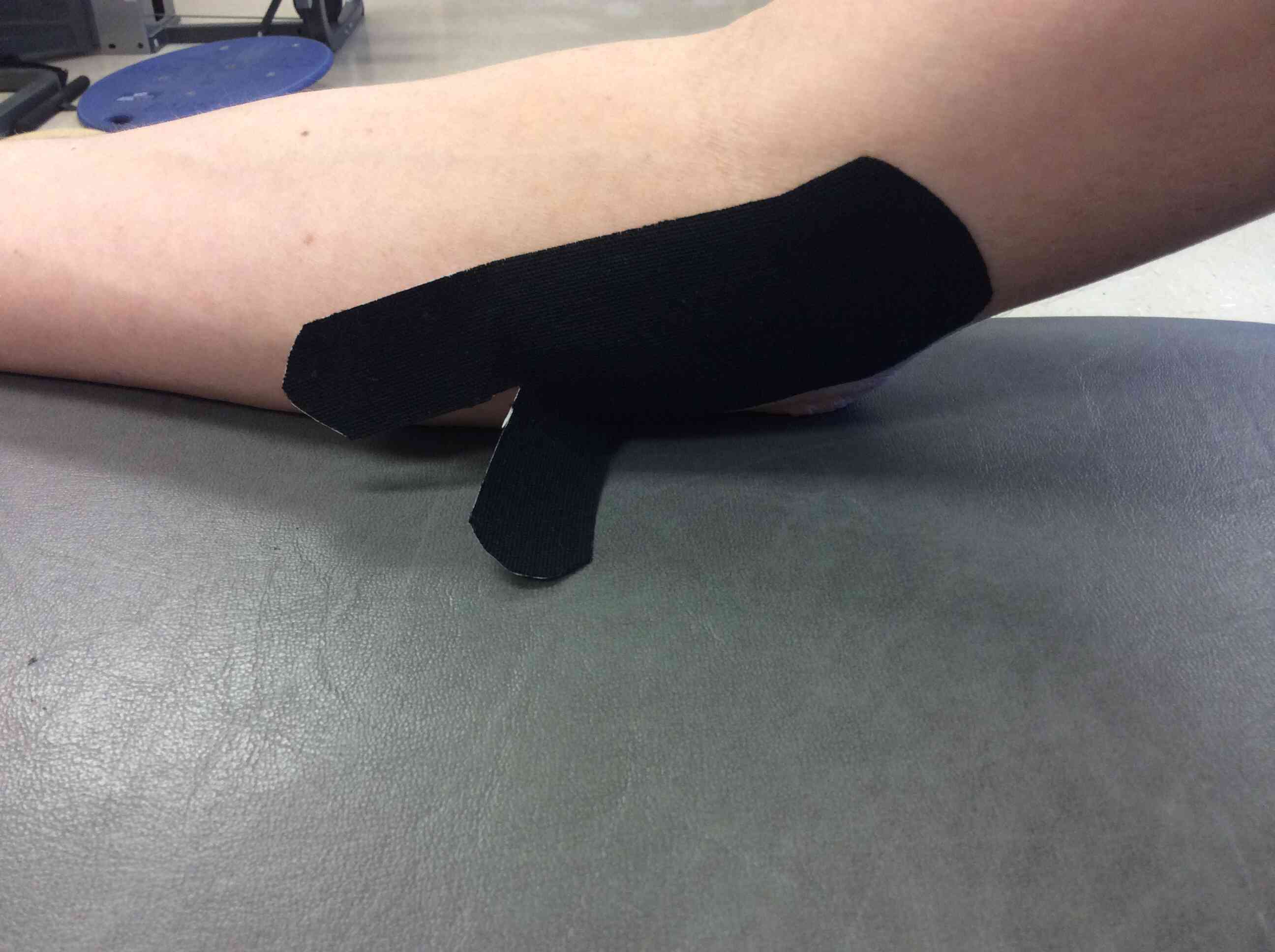 Kinesiology Taping For Medial Epicondylitis