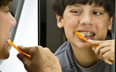 It's extra challenging to brush teeth and floss with braces on