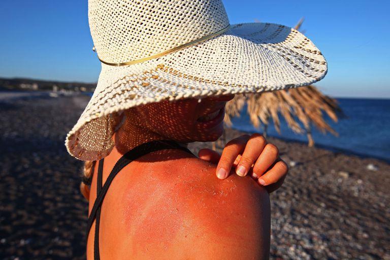 Woman with peeling sunburn