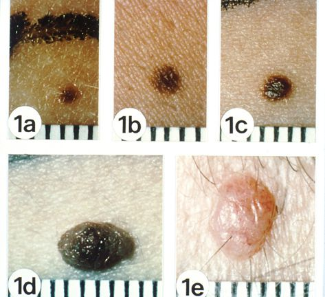 Spot the Differences Between a Mole and Skin Cancer
