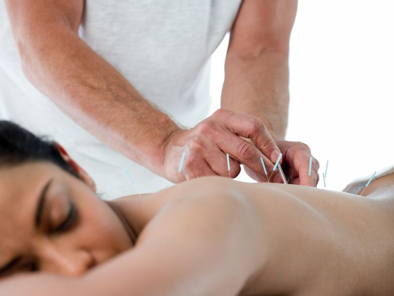 Woman receiving acupuncture for back pain.