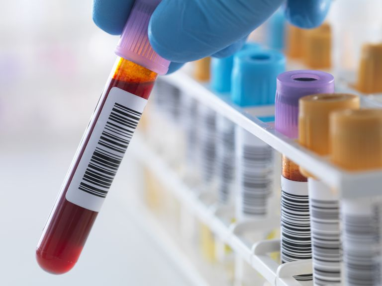 A blood sample being held with a row of human samples for analytical testing including blood, urine, chemistry, proteins, anticoagulants and HIV in lab
