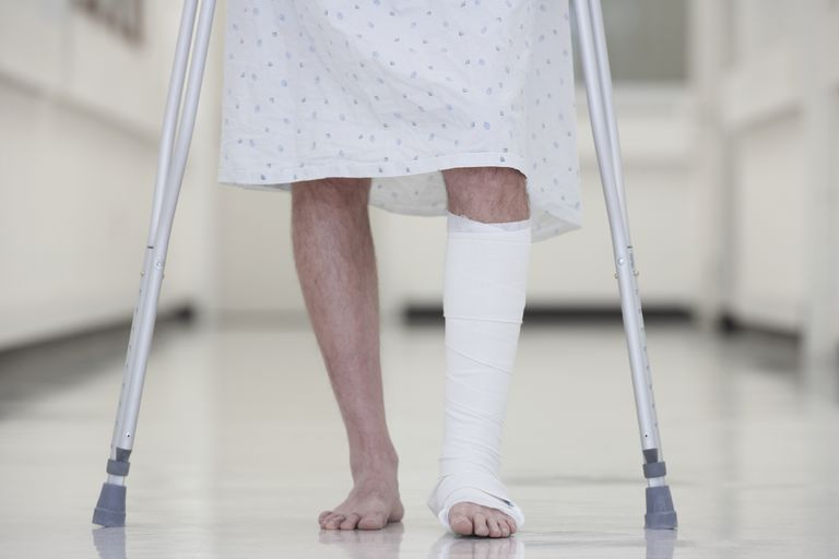 man with cast walking on crutches