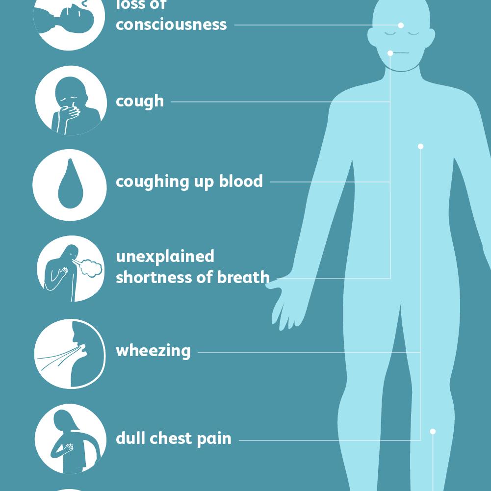 Symptoms Of Pulmonary Embolism