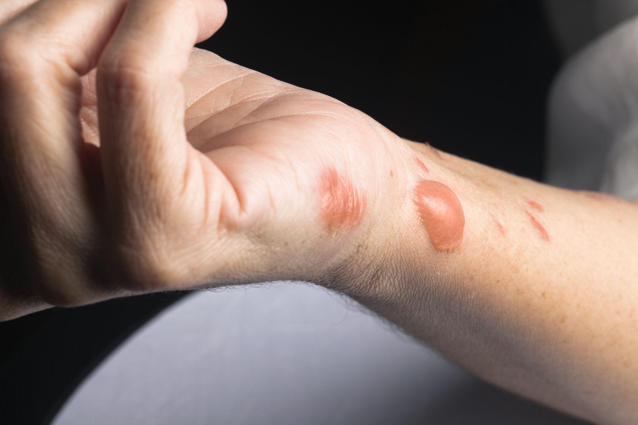 How Burn Scars Are Treated