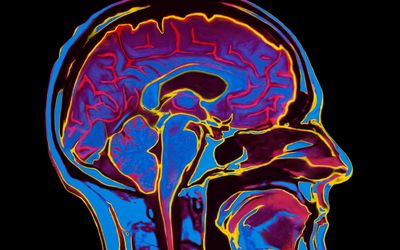 Scan of a human brain