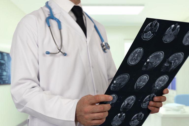 Doctor Examining Brain MRI