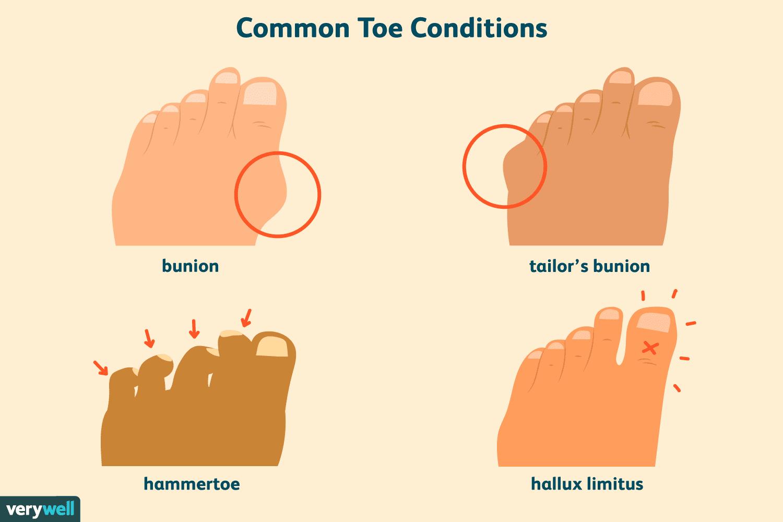 Common Toe Conditions