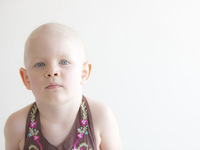 What is Burkitt's lymphoma