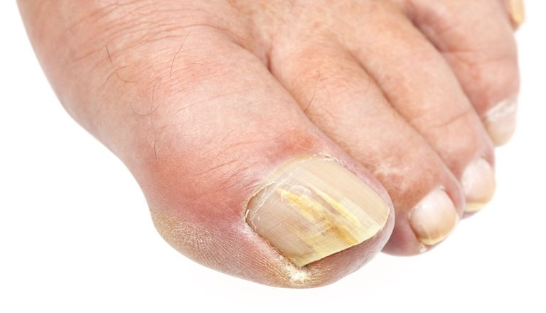 How Fungal Nail Infections Are Treated and Diagnosed