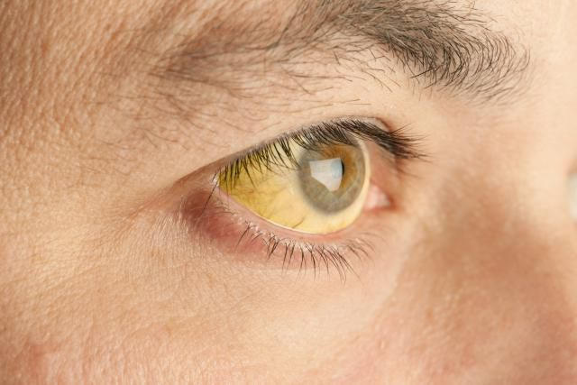 jaundice of the sclera (white of the eye)