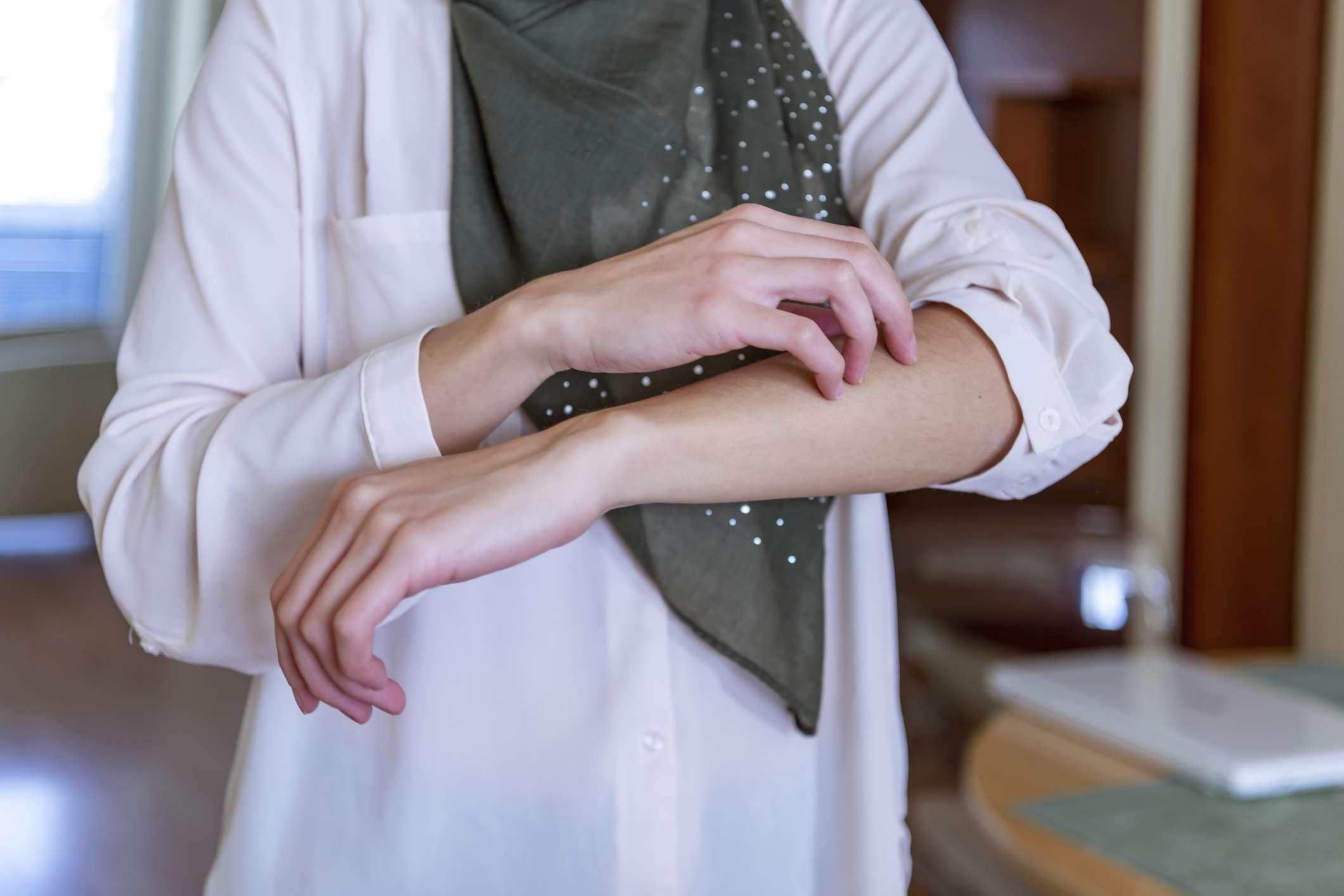Woman itching a rash