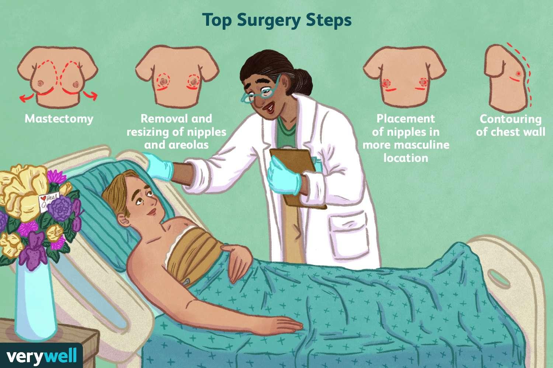Top Surgery Steps