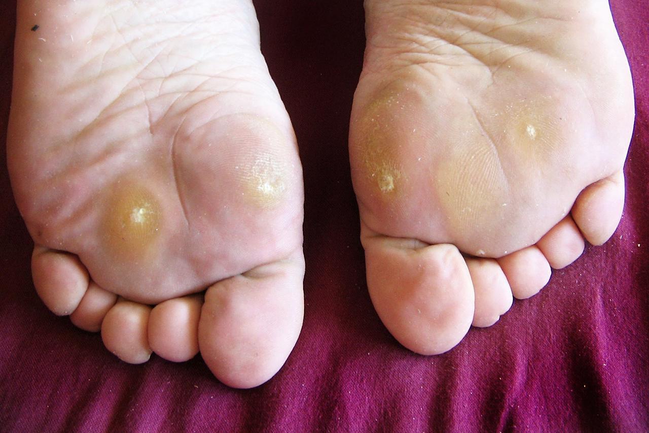 wart on foot sore virus del papiloma tipo 6