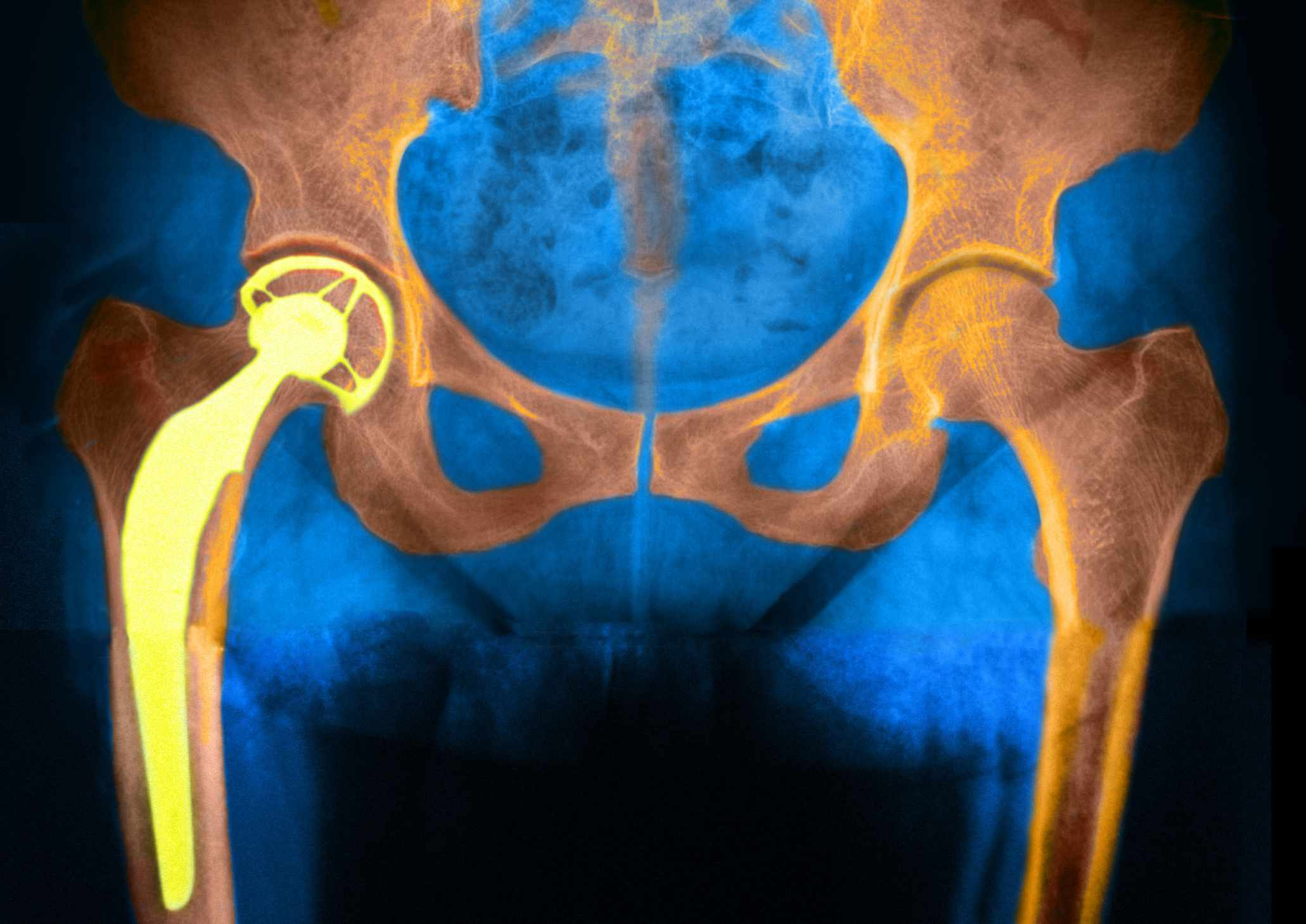 X-ray graphic of a hip replacement