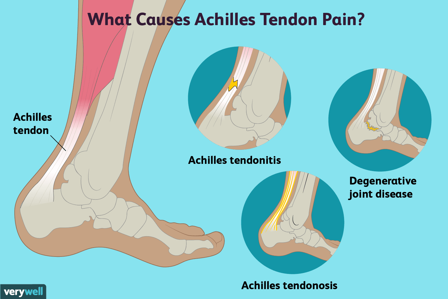 Achilles Tendon Pain Causes Treatment And When To See A Doctor
