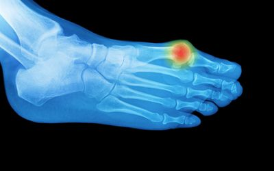 Foot x-ray with an area of pain or swelling